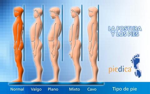 Una buena postura desde la infancia evitará dolorosas y traumáticas  consecuencias 8c3916a54720